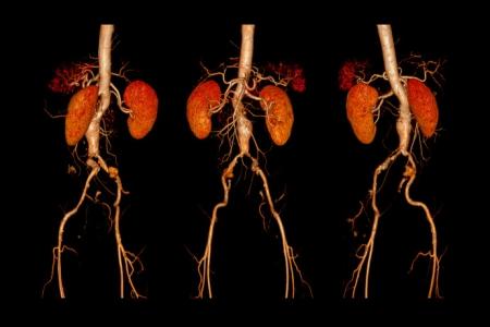 Ανεύρυσμα νεφρικής αρτηρίας. Κύηση και τοκετός
